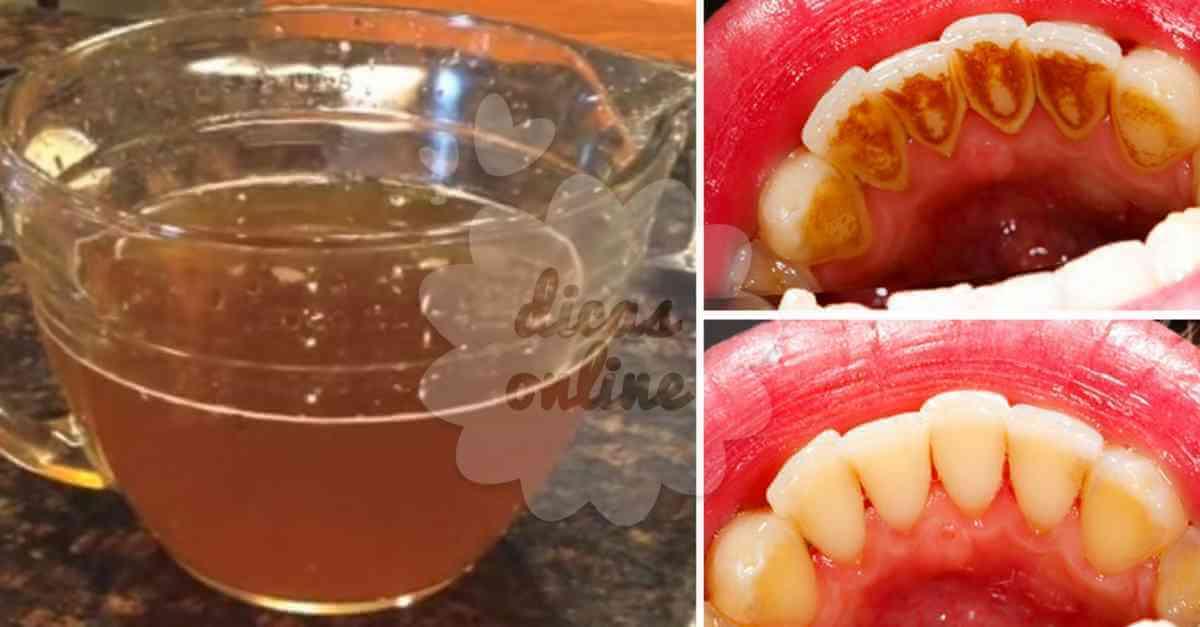 Dentes Mais Brancos Sem Quimica