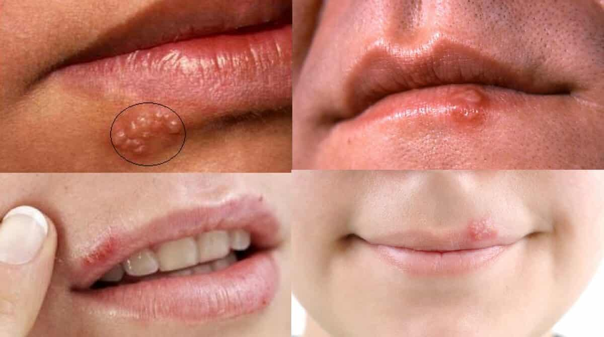 herpes-labial-inicial