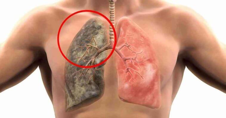 Resultado de imagem para Como eliminar nicotina dos pulmões naturalmente?