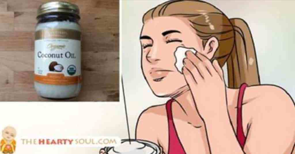 Resultado de imagem para Óleo de coco para acne