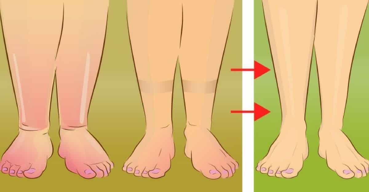 é normal ter um tornozelo inchado durante a gravidez